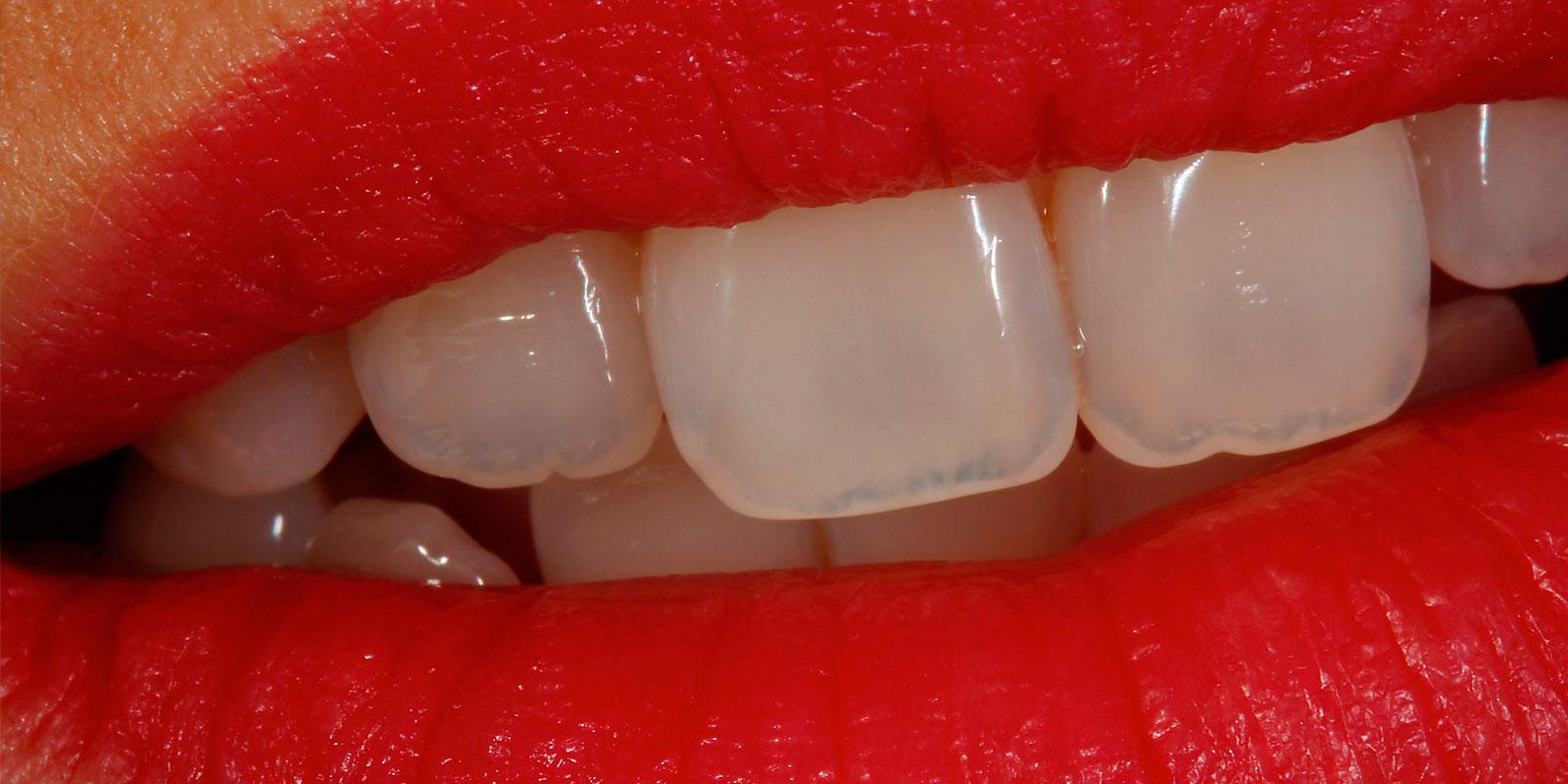 ortodoncia_ninos_clinica_gdent